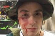 Неизвестные злоумышленники избили участника Quest Pistols Show