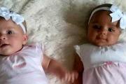 В Великобритании родились разноцветные близнецы